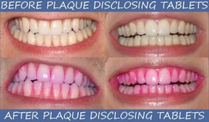 plaque_disclosing_tablets_on_teeth_before_after-640x376